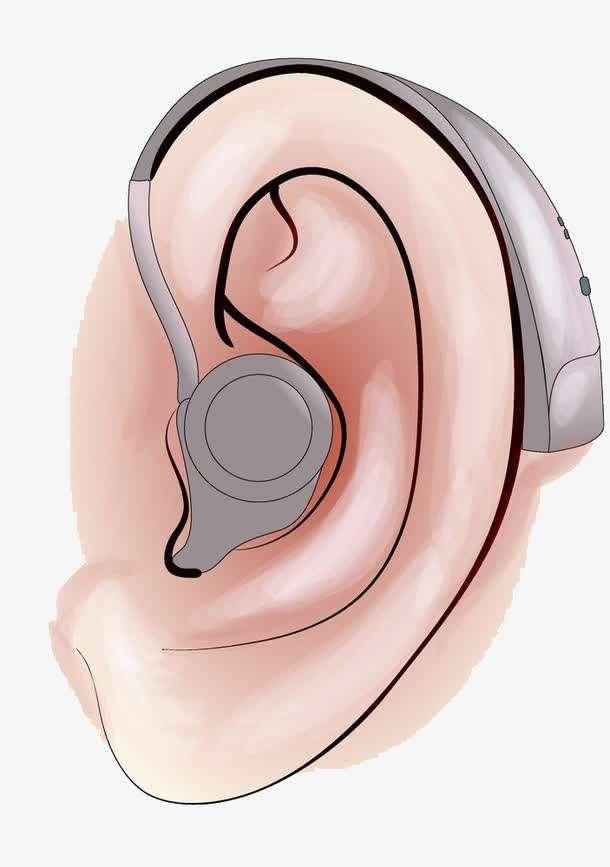 如何选配助听器?